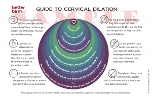 Cervix Dilation: Printable Guide
